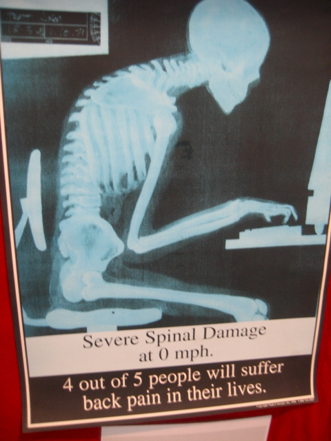 640_v09spinaldamage.jpg