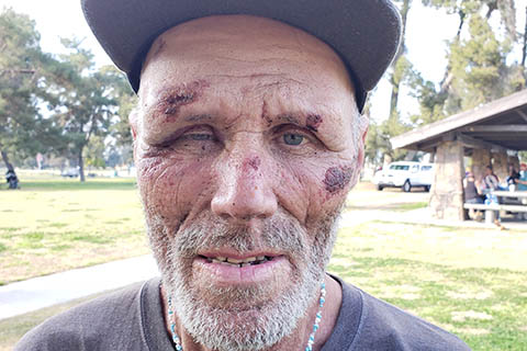 Homeless Man Pummeled by Fresno Cops